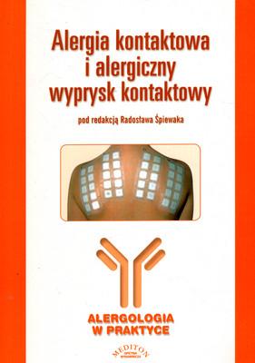 ALERGIA KONTAKTOWA I ALERGICZNY WYPRYSK KONTAKTOWY