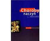 Szczegóły książki CHOROBY NACZYŃ. WYBRANE PROBLEMY