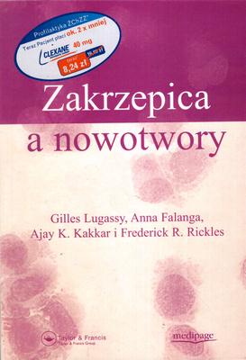 ZAKRZEPICA A NOWOTWORY